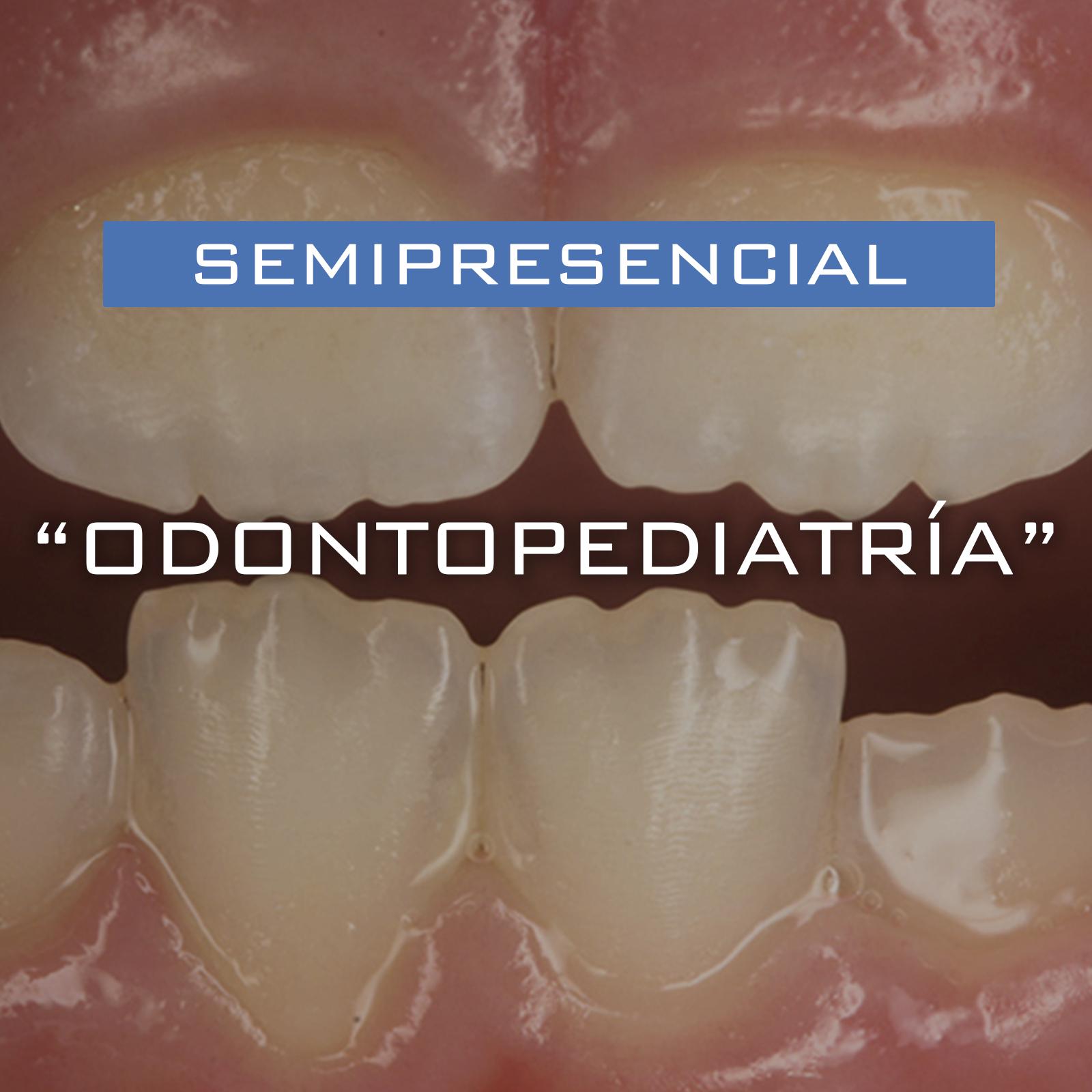 Curso Modular Semipresencial en Odontopediatría para Postgraduados – Septiembre 2021